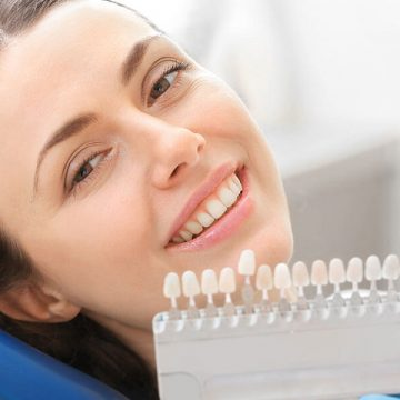 Difference Between Porcelain Veneers and Dental Lumineers