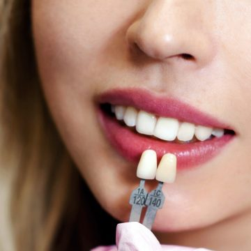 Lumineers vs. Veneers: What Are the Differences Between the Two?