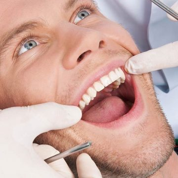 Why Are the Dental Exams Necessary and How Are It Done?