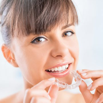 The Top 5 Facts About Invisalign® Braces